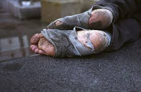 homelessfeet